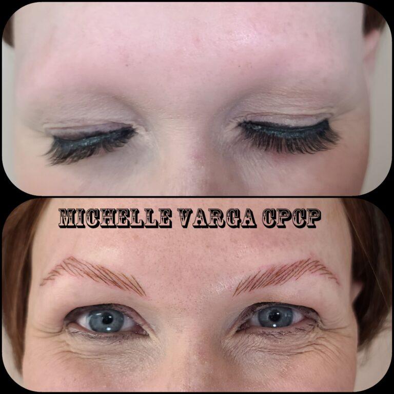 Alopecia clients 1