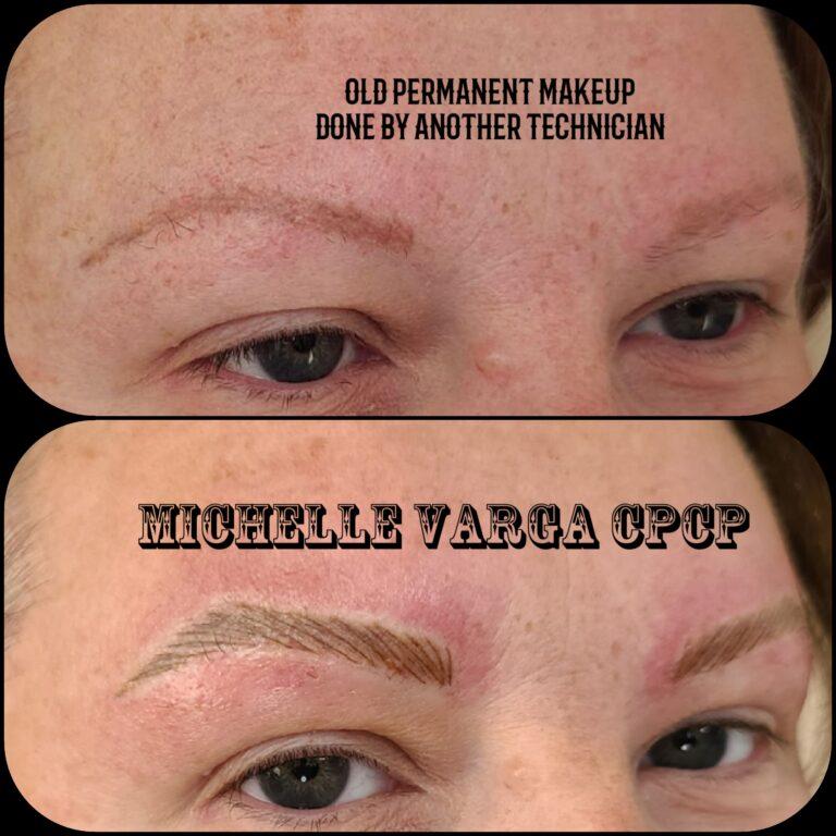 Alopecia clients 2