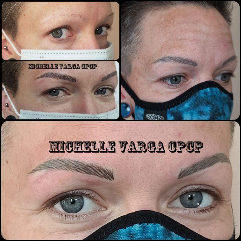 Alopecia clients 4