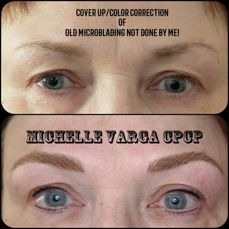 Eyebrow Repair 1