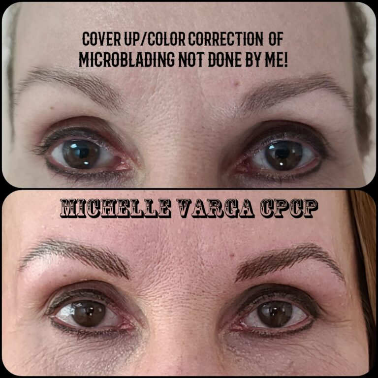 Eyebrow Repair 3